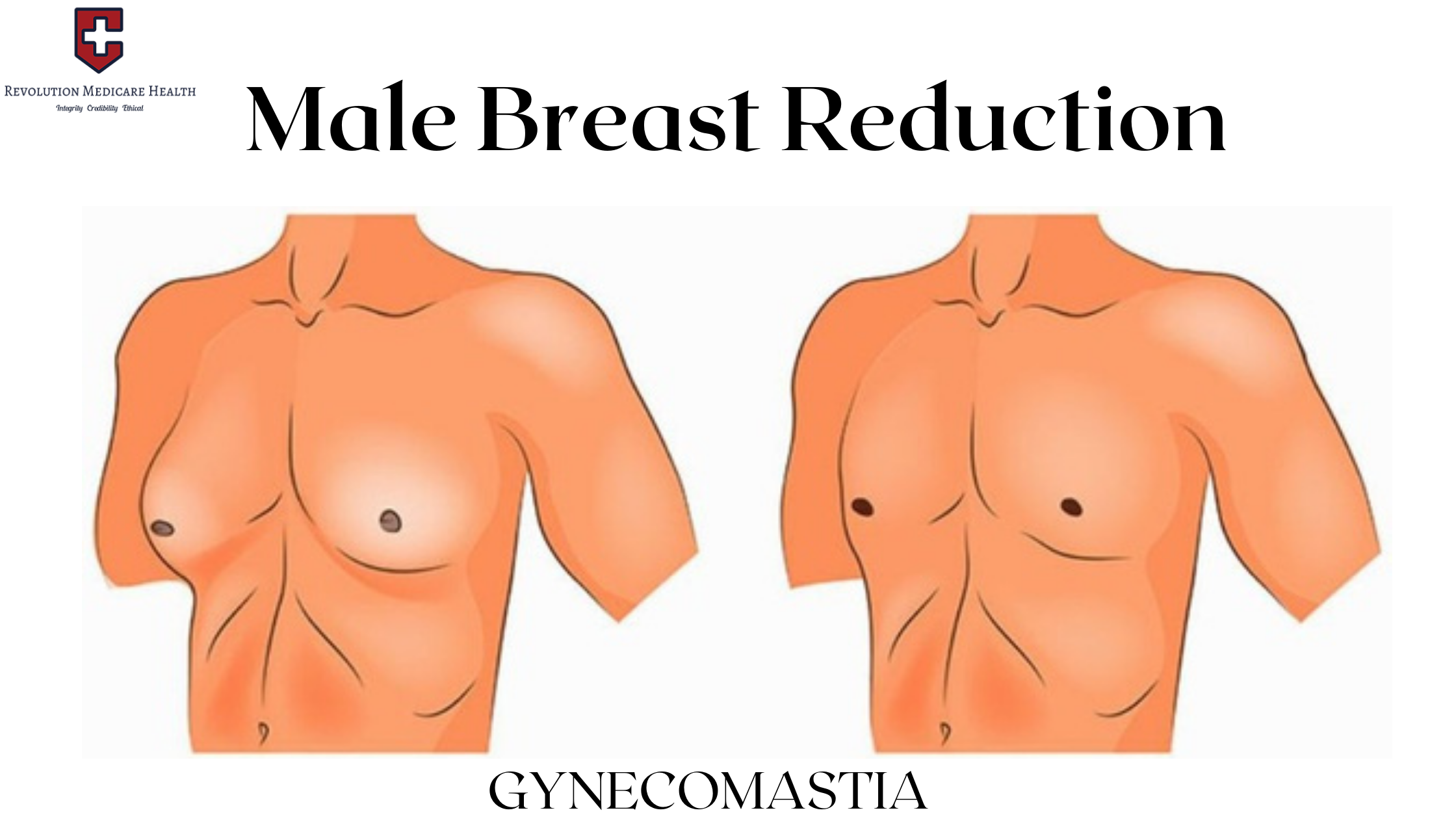 Male breast reduction Surgery by Dr. Rahul Dalal